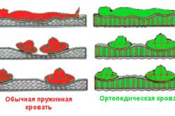 Принцип работы ортопедической кровати